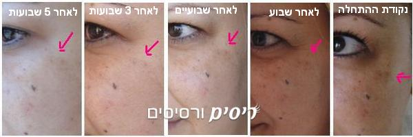 קליניק סרום לטשטוש פידמנטציה - Even Better Clinical Dark Spot Corrector - מבחן התוצאה