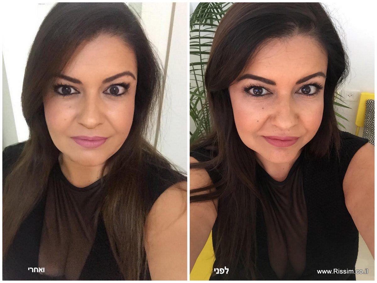חומצה היאלורונית לפני ואחרי