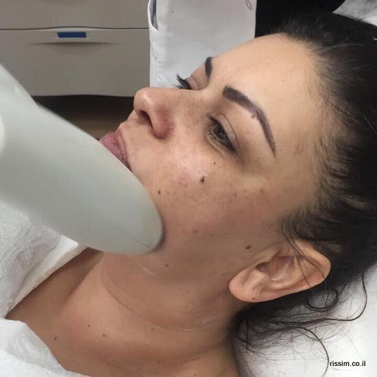 על מיטת הטיפולים - טיפול למיצוק הסנטר